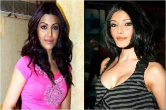 Photo Credit http://www.mtvindia.com/blogs/general/just-in/10-extremely-shocking-celeb-plastic-surgery-disasters-52119353.html